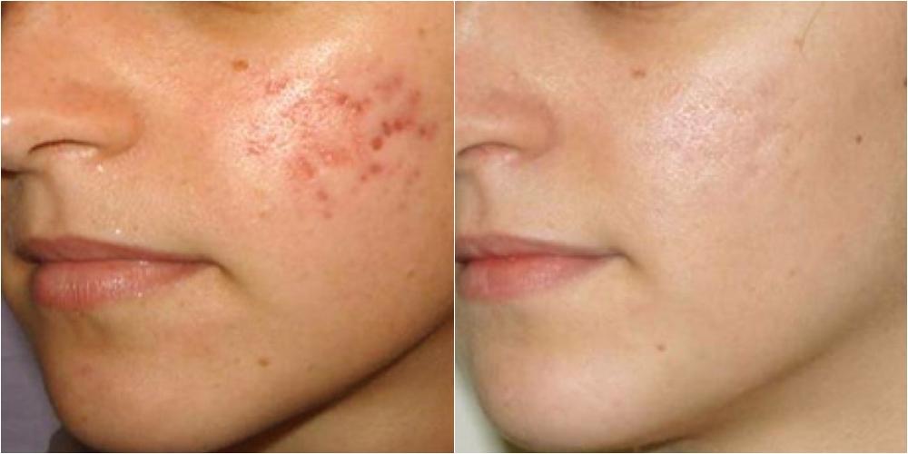 pierde cicatricile de acnee în greutate