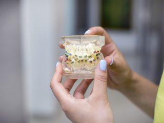 Despre alinierea dinților – importanța și beneficiile aparatului dentar